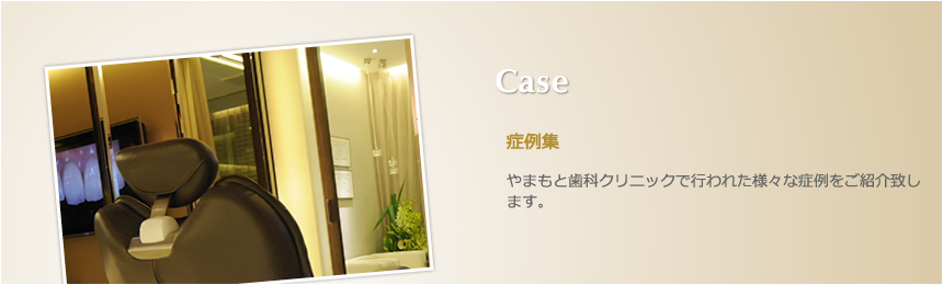 Case 症例集 やまもと歯科クリニックで行われた様々な症例をご紹介致します。
